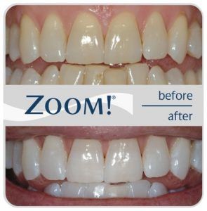 Teeth Whitening In Winter Garden Fl Stoneybrook Dental